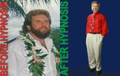 roger-moore-hypnotherapist-before-after-weight-loss
